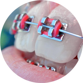 bd-ortodontie