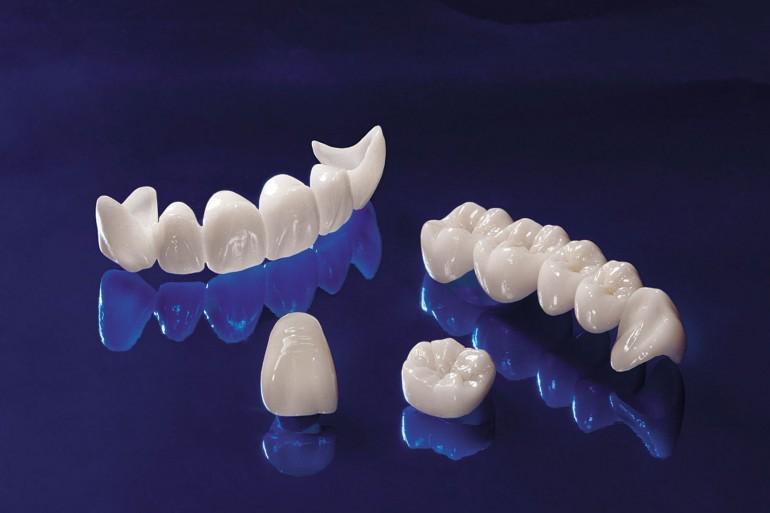 proteze dentare fixe