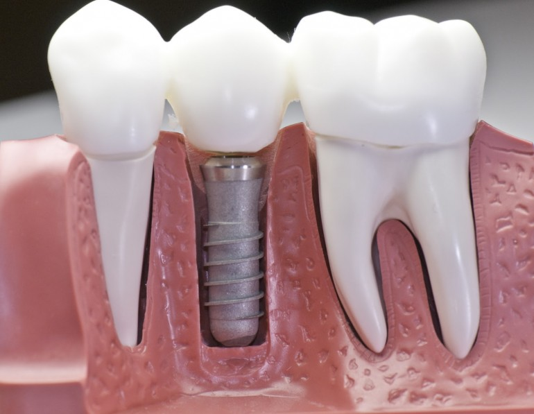 Mituri implant dentar