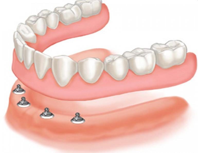 proteza pe implant dentar